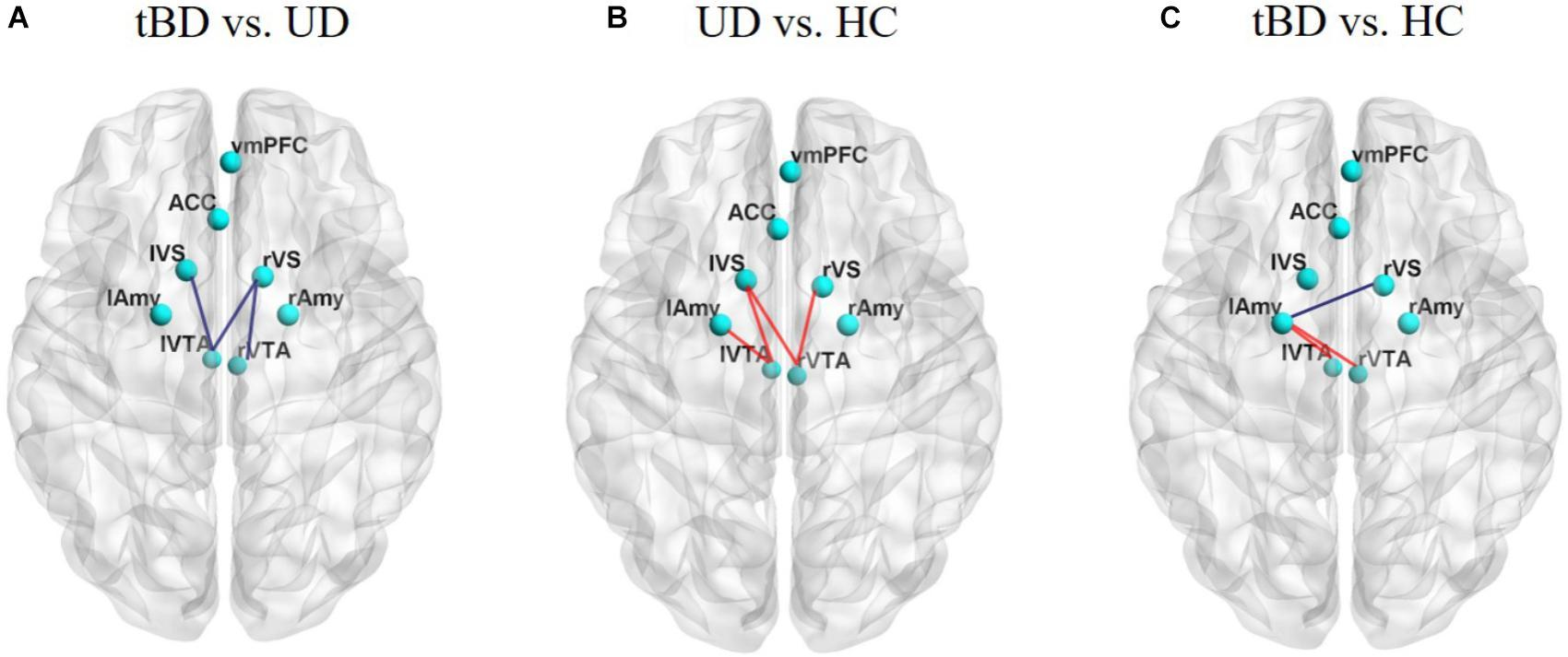 Система вознаграждения мозга предсказала развитие биполярного расстройства