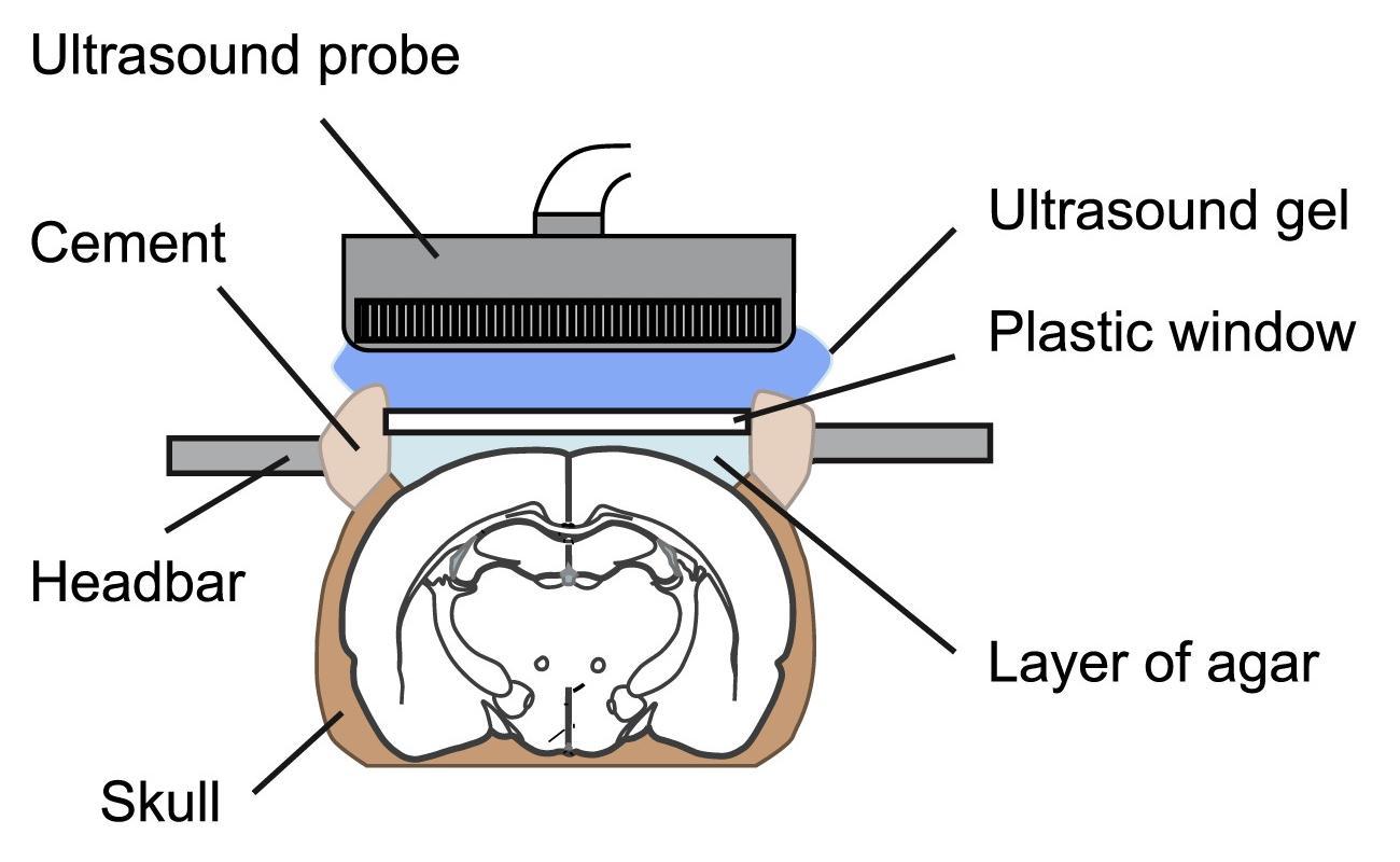Ультразвук стал новым «проводником» в области нейровизуализации