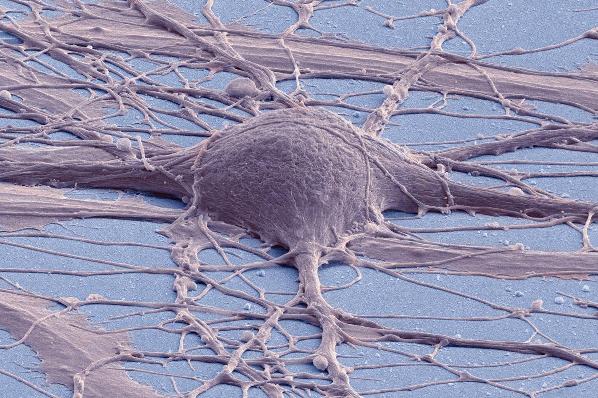 Как астроциты нейроны ремонтируют