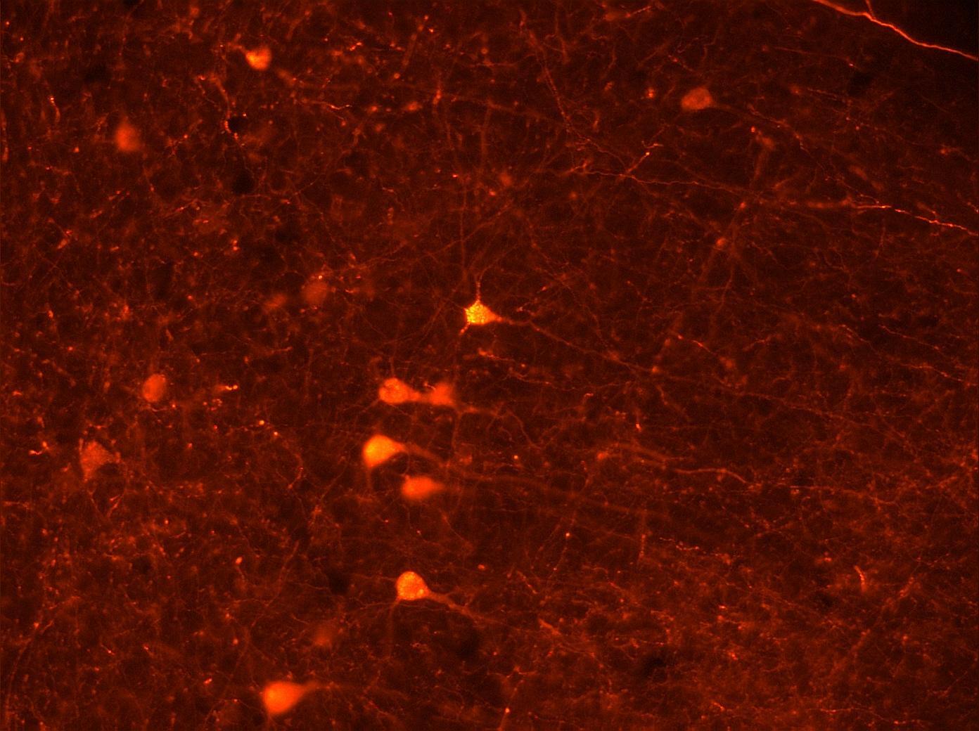 Как кратковременная память превращается в долговременную