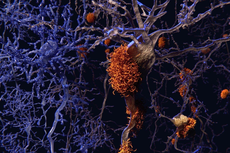 Диагноз деменции поставят по одной молекуле