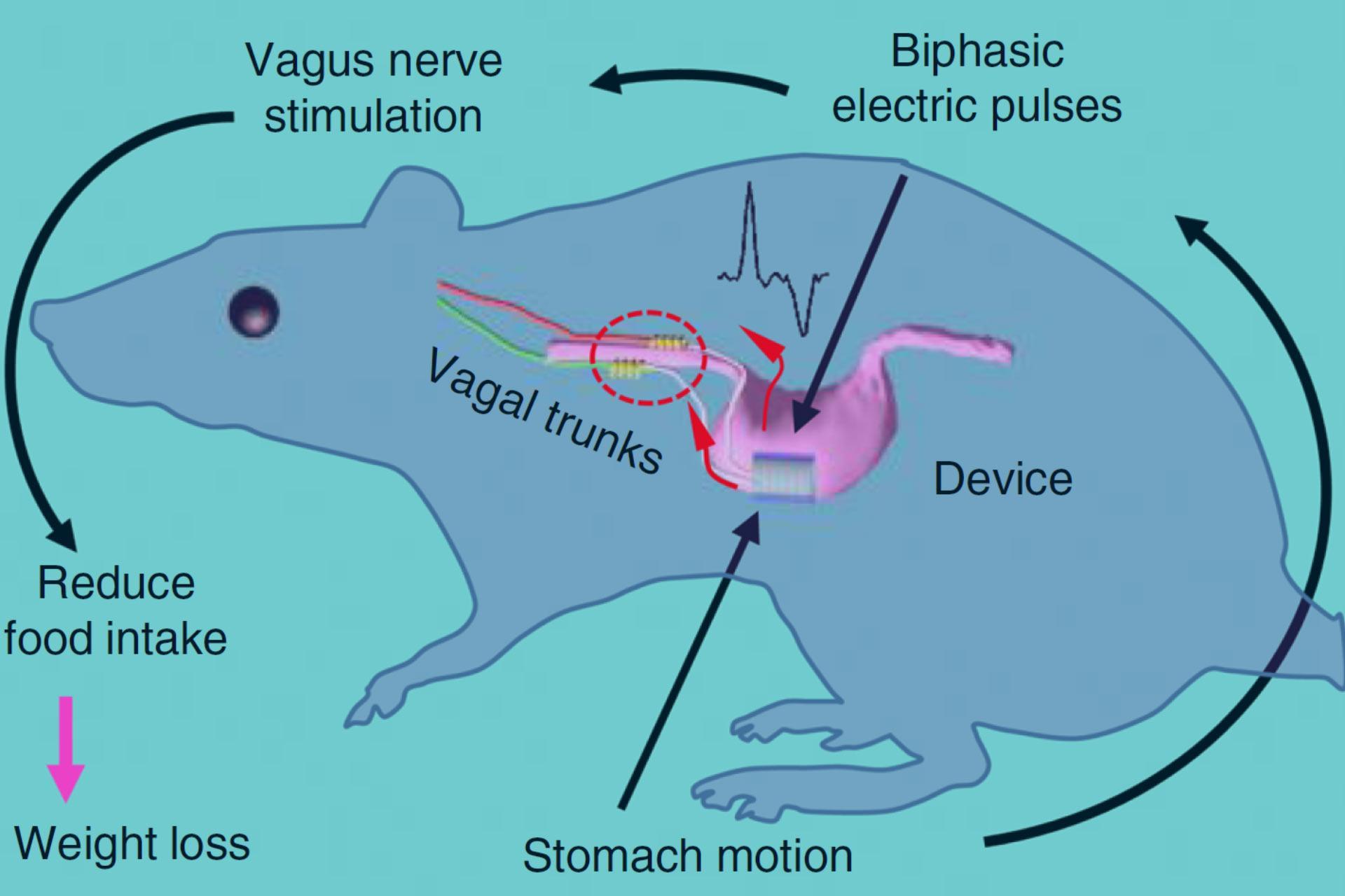 Сенсор в желудке подаст сигнал о сытости и поможет не растолстеть