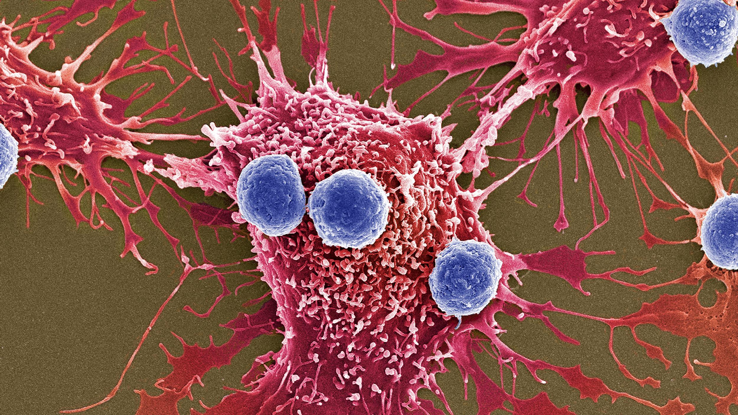 Ученые пообещали лекарство против рака через год. Эксперты настроены скептически