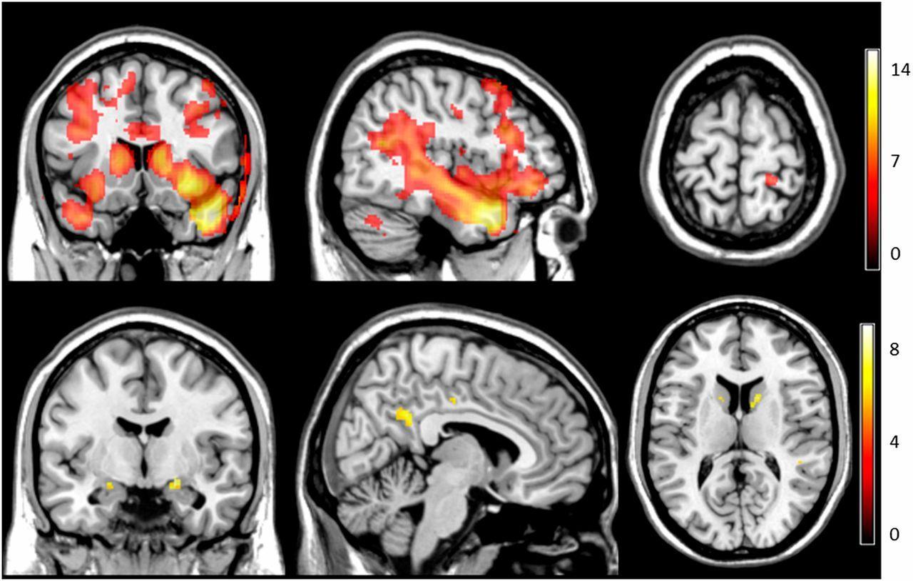Мозг по-разному отреагировал на касания себя и других