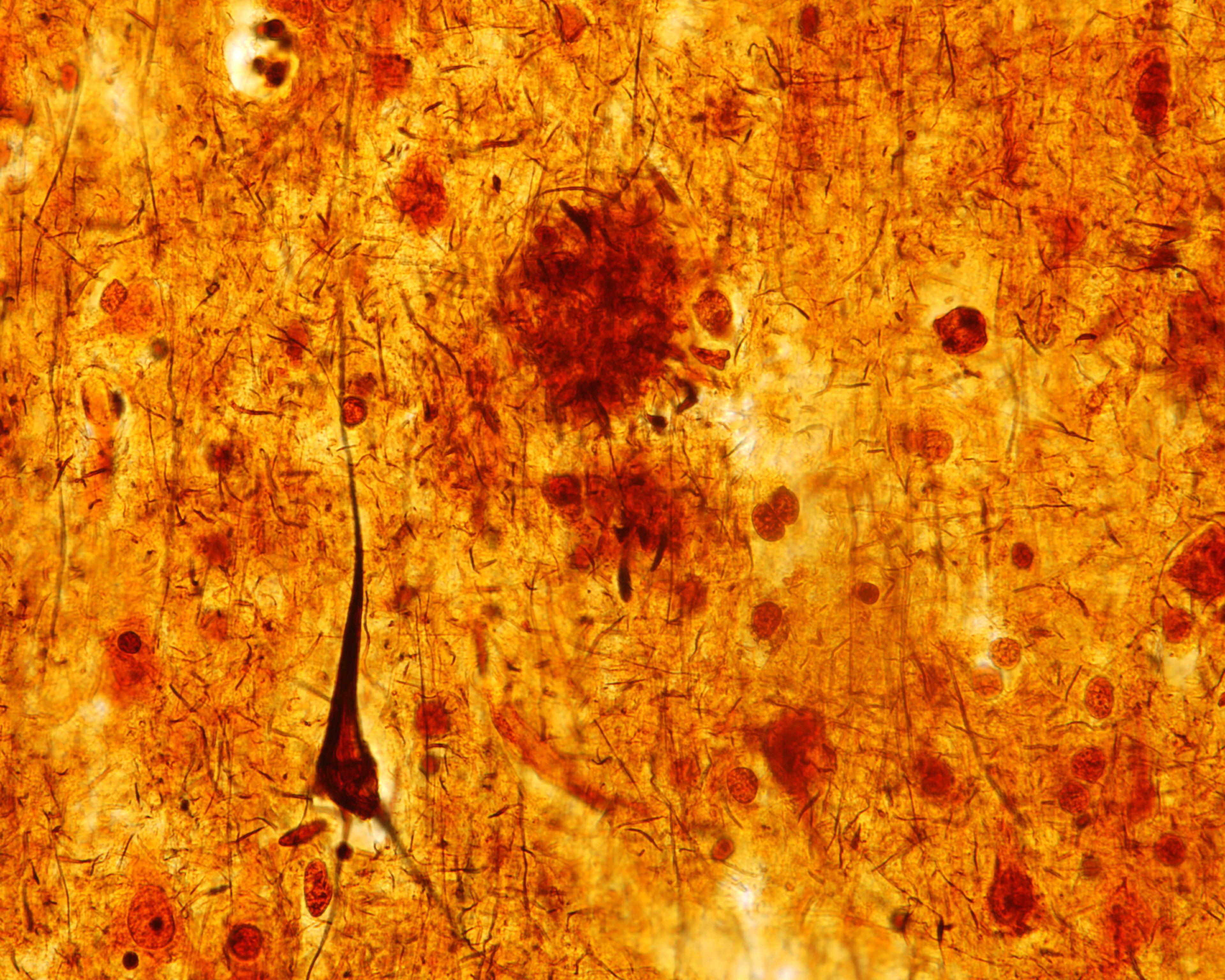 Не хотите заболеть Альцгеймером – не лишайте себя сна