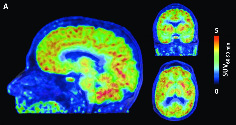 Эпигенетическую регуляцию в мозге увидели с помощью диеты и МРТ