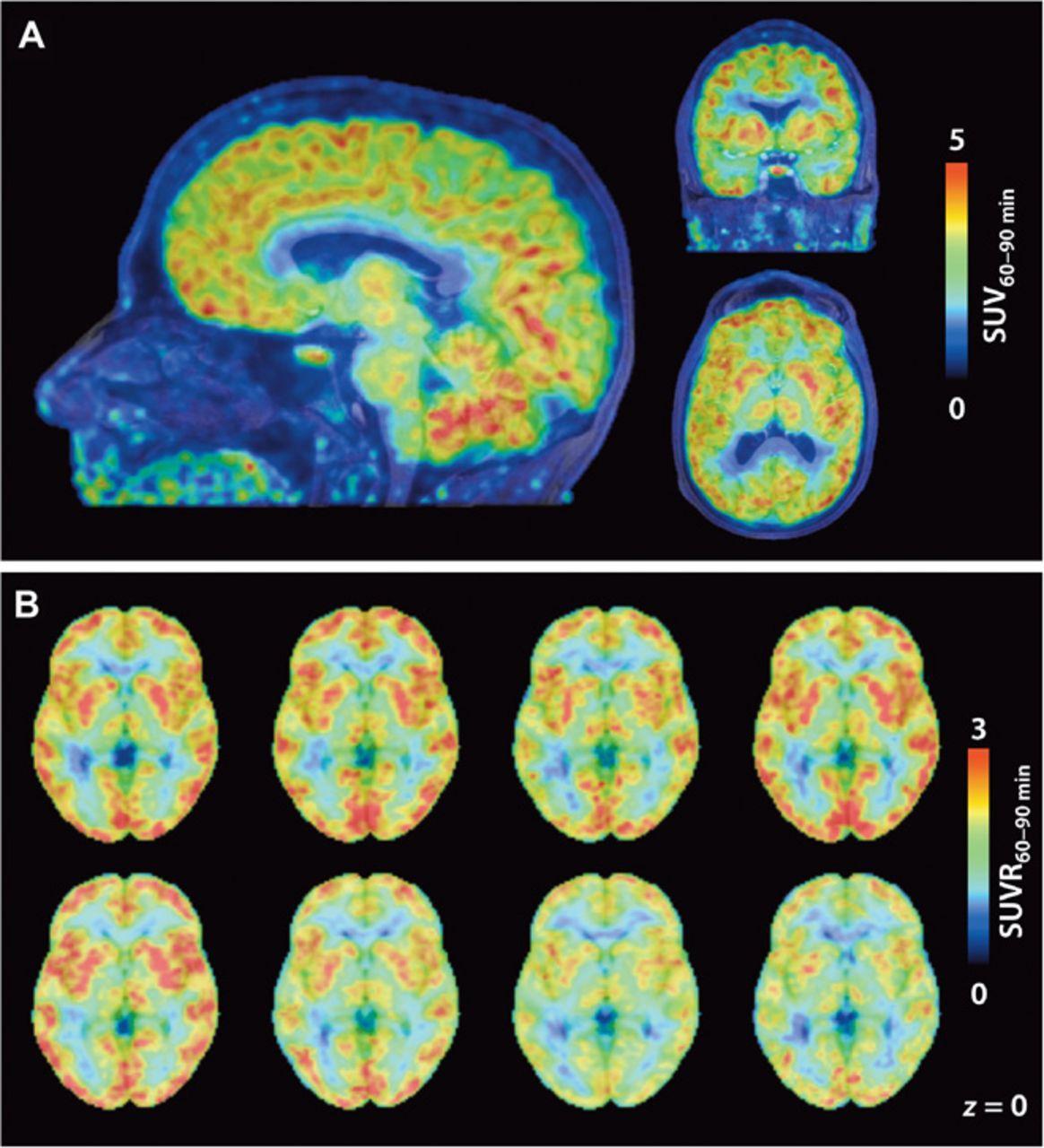 Как увидеть работу генов мозга в реальном времени