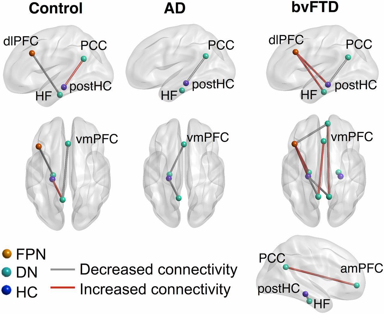 Деменция заставила мозг меньше «витать в облаках»