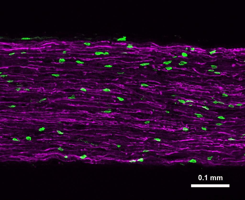 Иммунные клетки помогут бороться с нейропатической болью