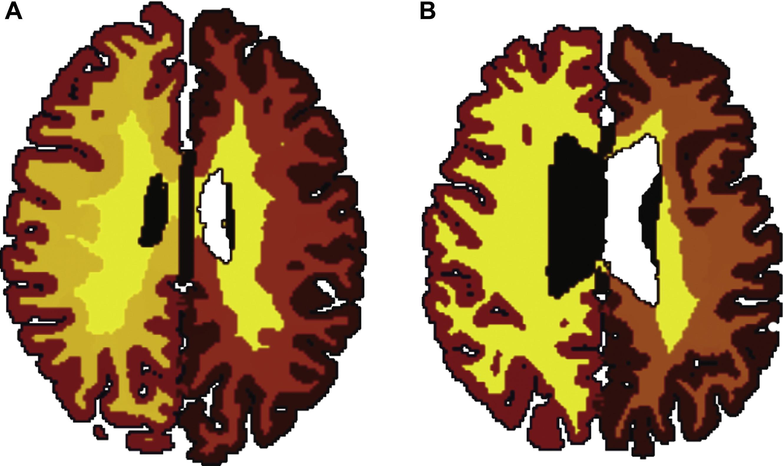 У полных людей мозг стареет быстрее