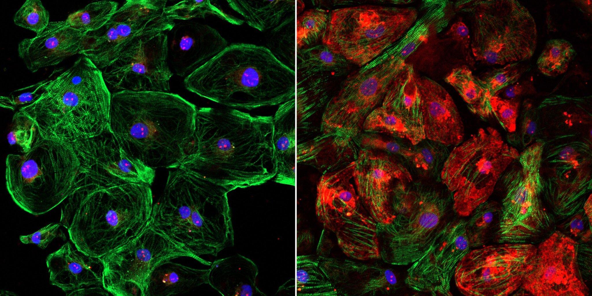 Аденоассоциированные вирусы и CRISPR снова справились с мышечной дистрофией