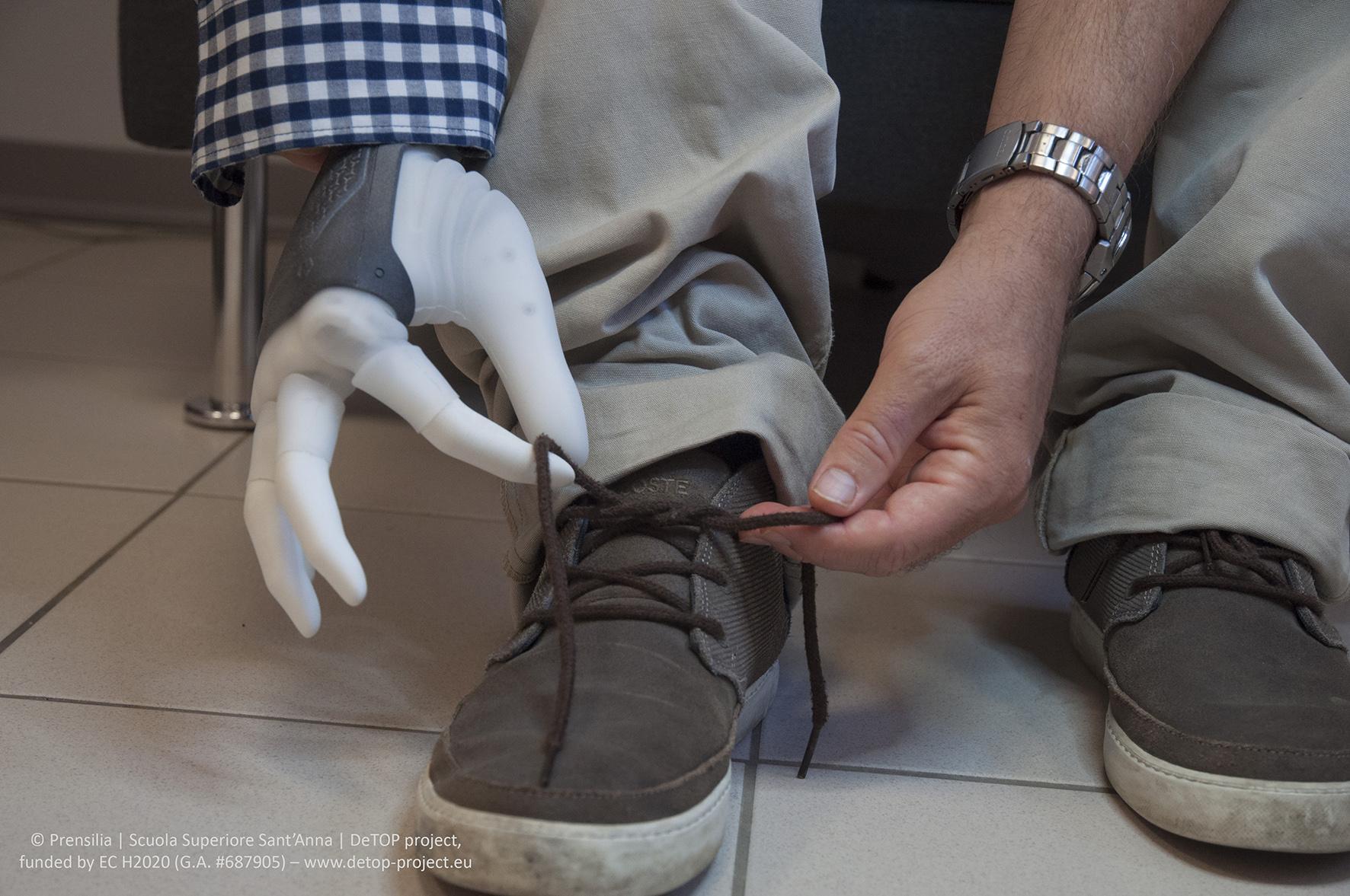 Успешно имплантирован первый чувствительный протез руки с шарнирными сочленениями