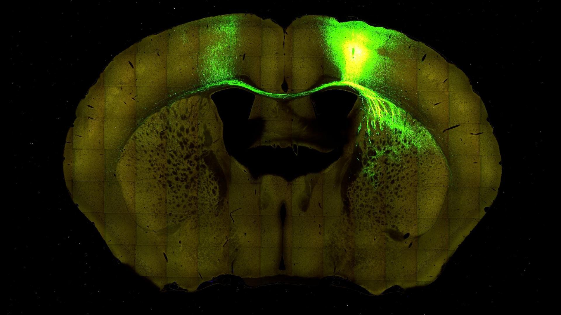 Эффективность обучения связали с синхронизацией потенциалов в синапсе