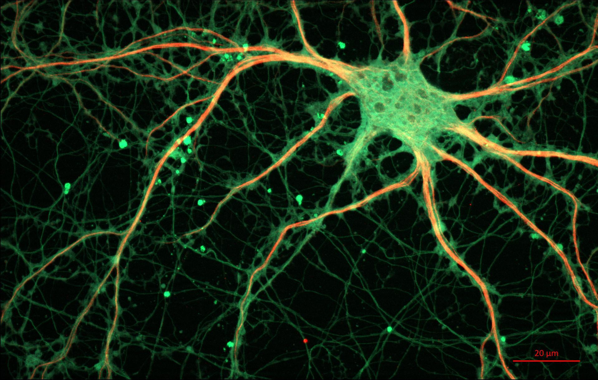 Успешность лечения депрессии может быть связана с формой нейронов