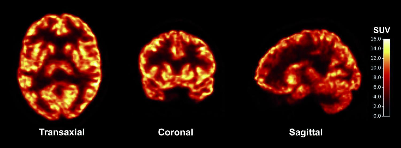 Как увидеть плотность синапсов в живом мозге человека