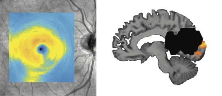 Как мозг «помогает» сетчатке выживать