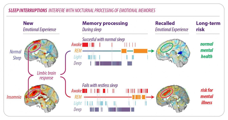 Сон помогает забыть неприятные воспоминания, если у вас нет бессонницы