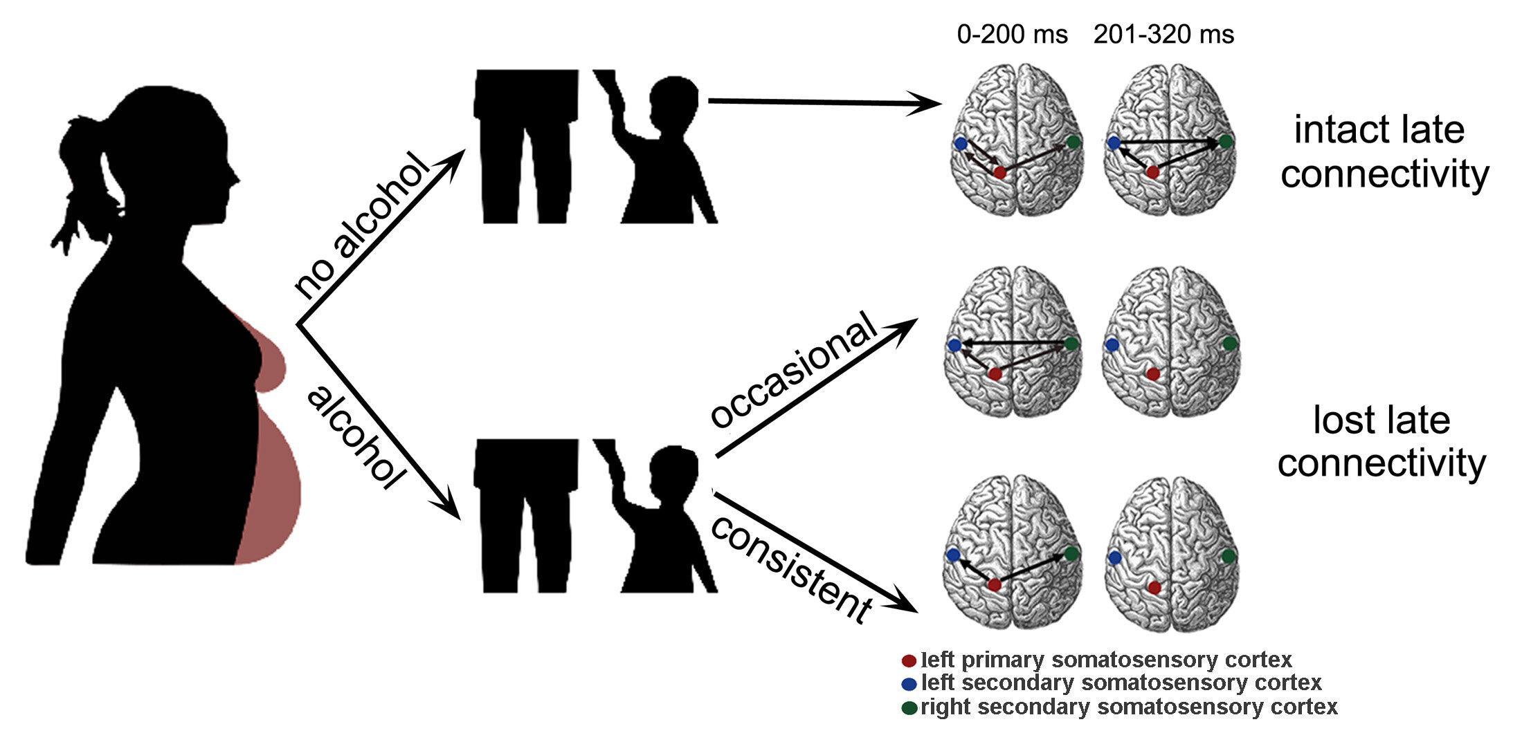 Любая доза алкоголя при беременности нарушает связь между полушариями мозга плода