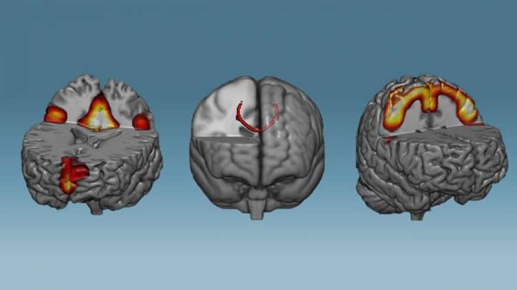Тренируй мозг – укрепляй нейронные сети