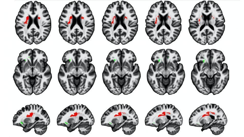 Мозг стареет в обратном от развития направлении