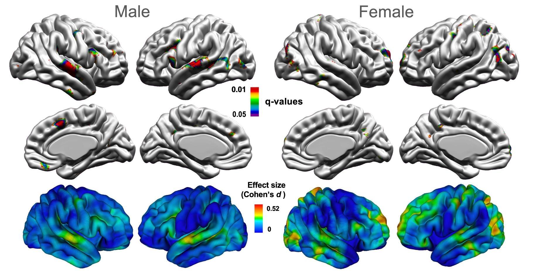 Мозг женщин при аутизме изменен сильнее