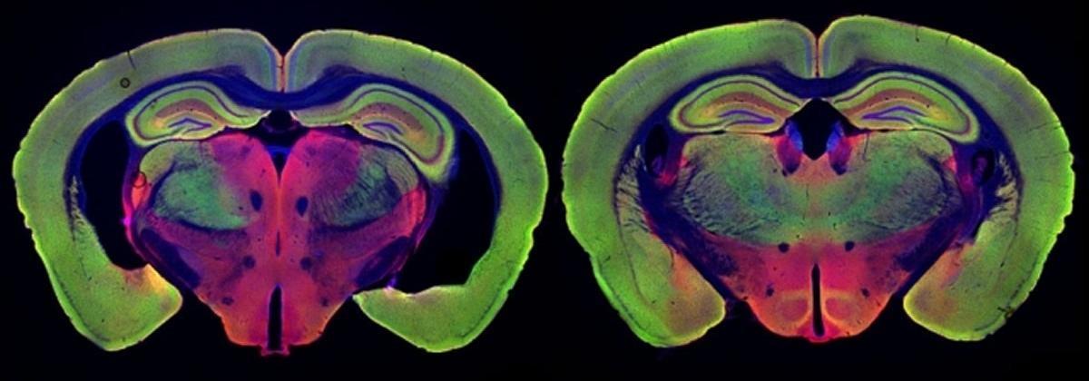 Свет и звук в борьбе с болезнью Альцгеймера: дело в нейронах или микроглии?