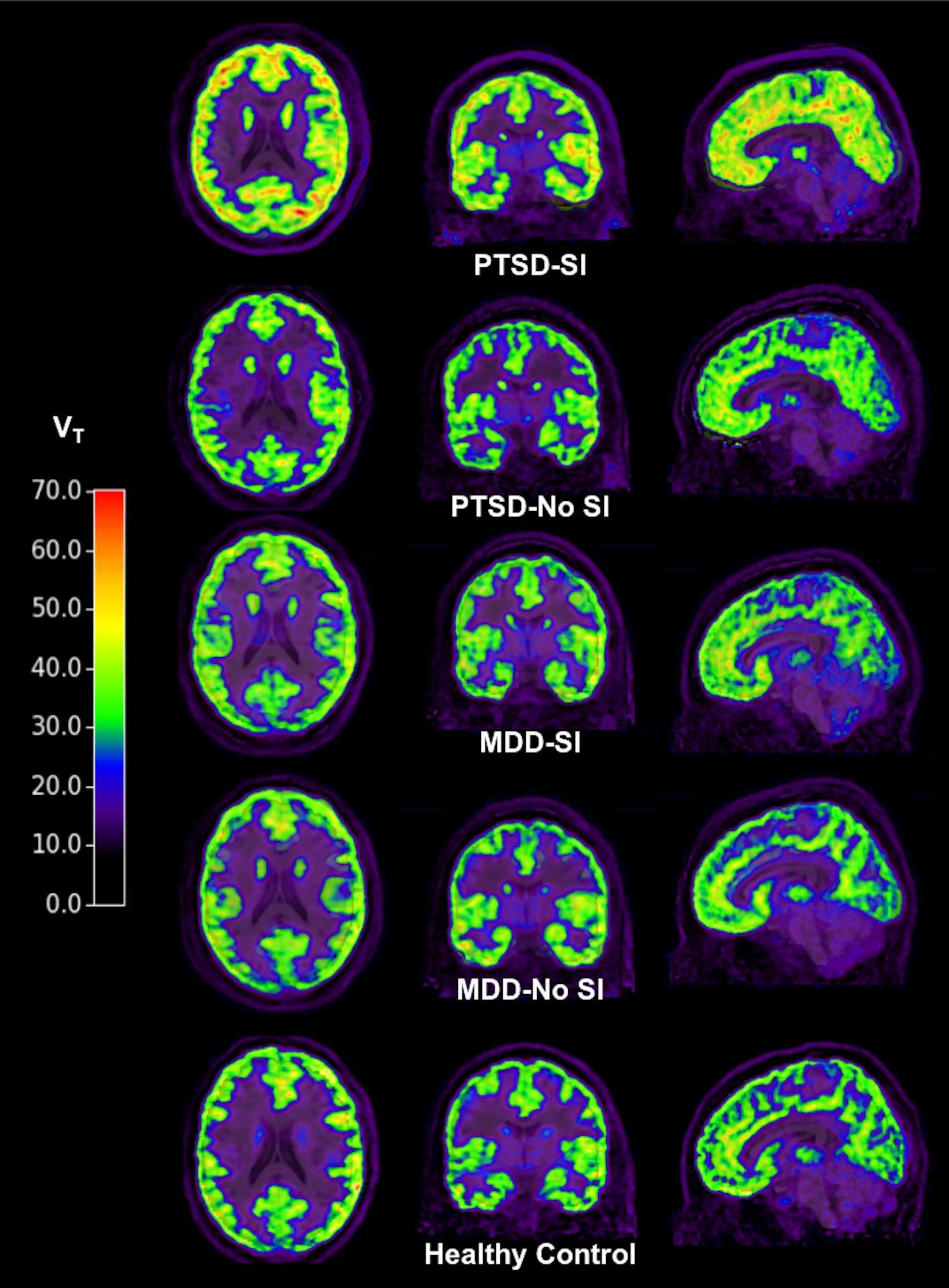 Метаботропные глутаматные рецепторы предсказали риск суицида при ПТСР