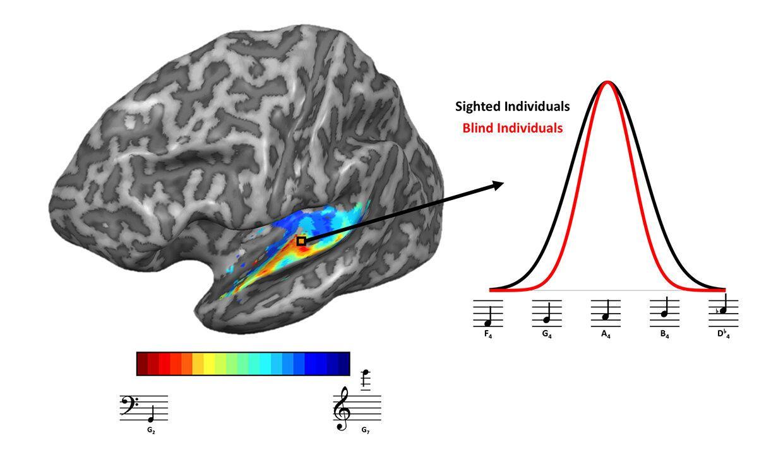 Новое исследование мозга объяснило, почему у слепых улучшается слух