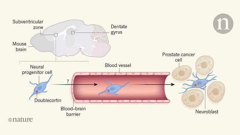 Как нервные клетки мозга проникают в опухоль простаты