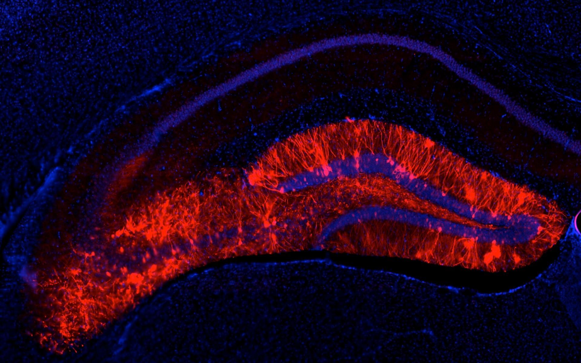 Эксперименты на гиппокампе показали, как улучшать или подавлять память