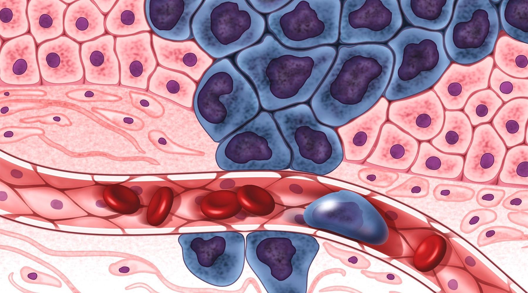 Лекарство может предотвратить раковые метастазы