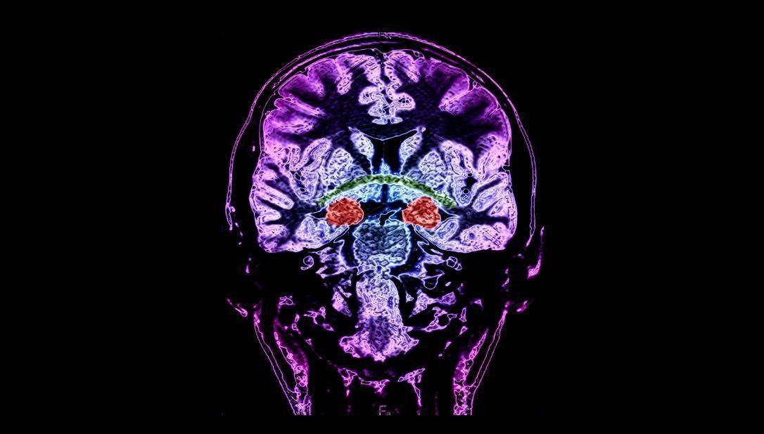Показано, как гиппокамп связан с эксплицитной памятью
