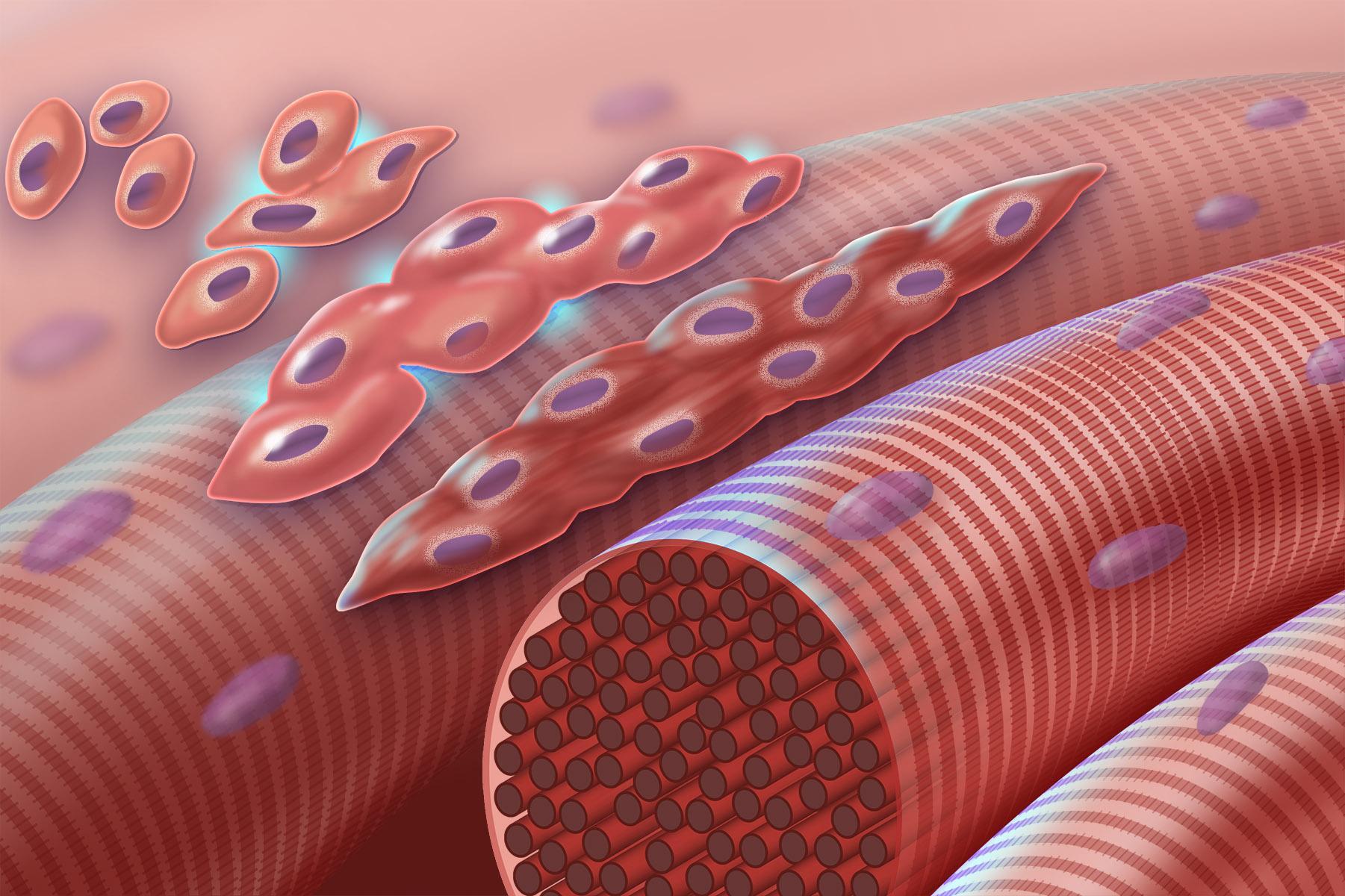 Мышечное заболевание лечат генной терапией