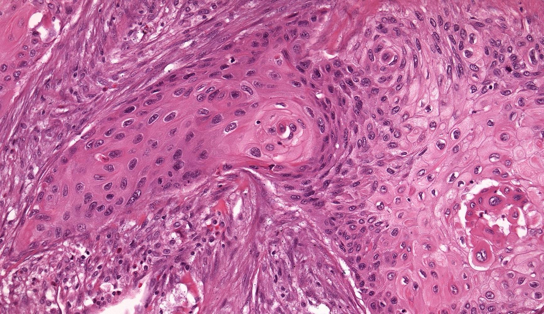 Избыток антиоксидантов увеличивает вероятность возникновения метастазов рака