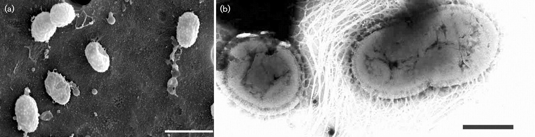 Кишечная микрофлора спасает нейроны от смерти