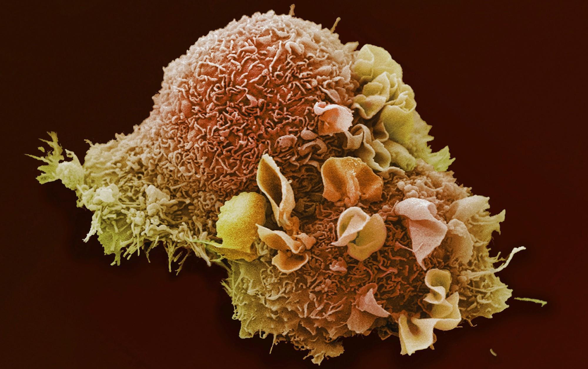 Антиоксиданты помогают раку метастазировать