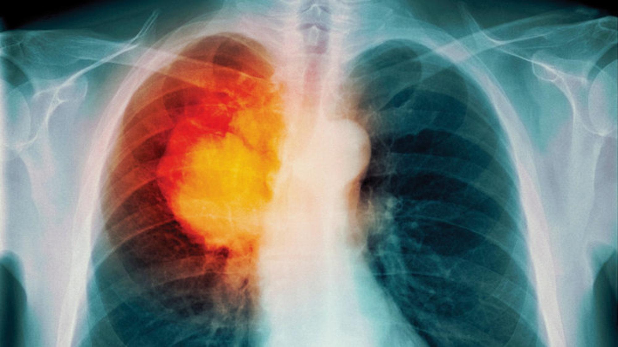 Антиоксиданты помогают метастазировать раку лёгких