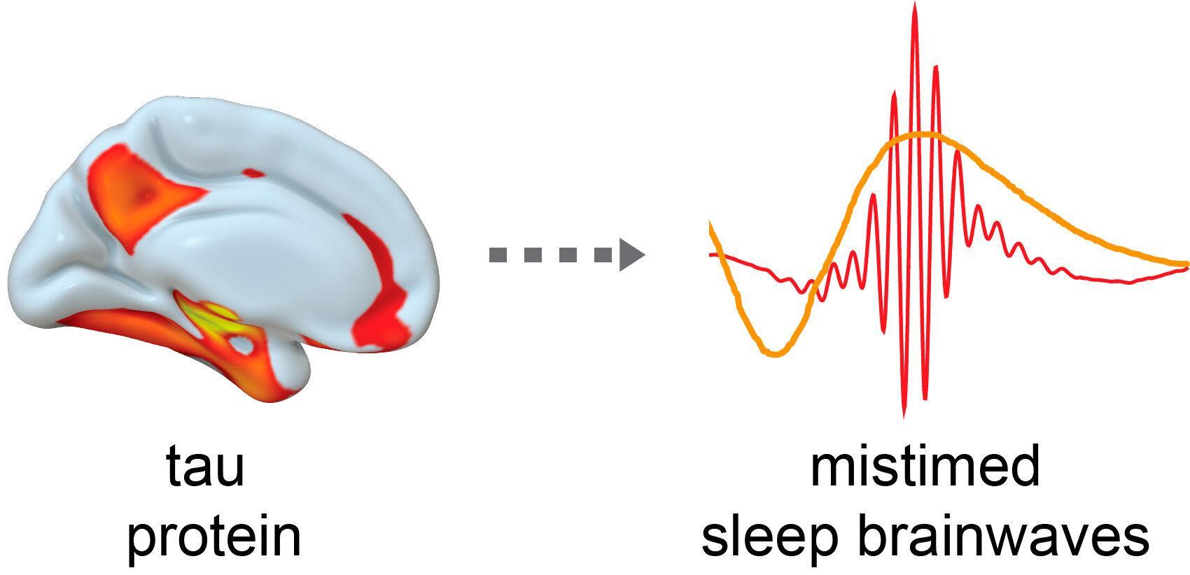 Плохой сон в среднем возрасте – предвестник нейродегенераций в старости