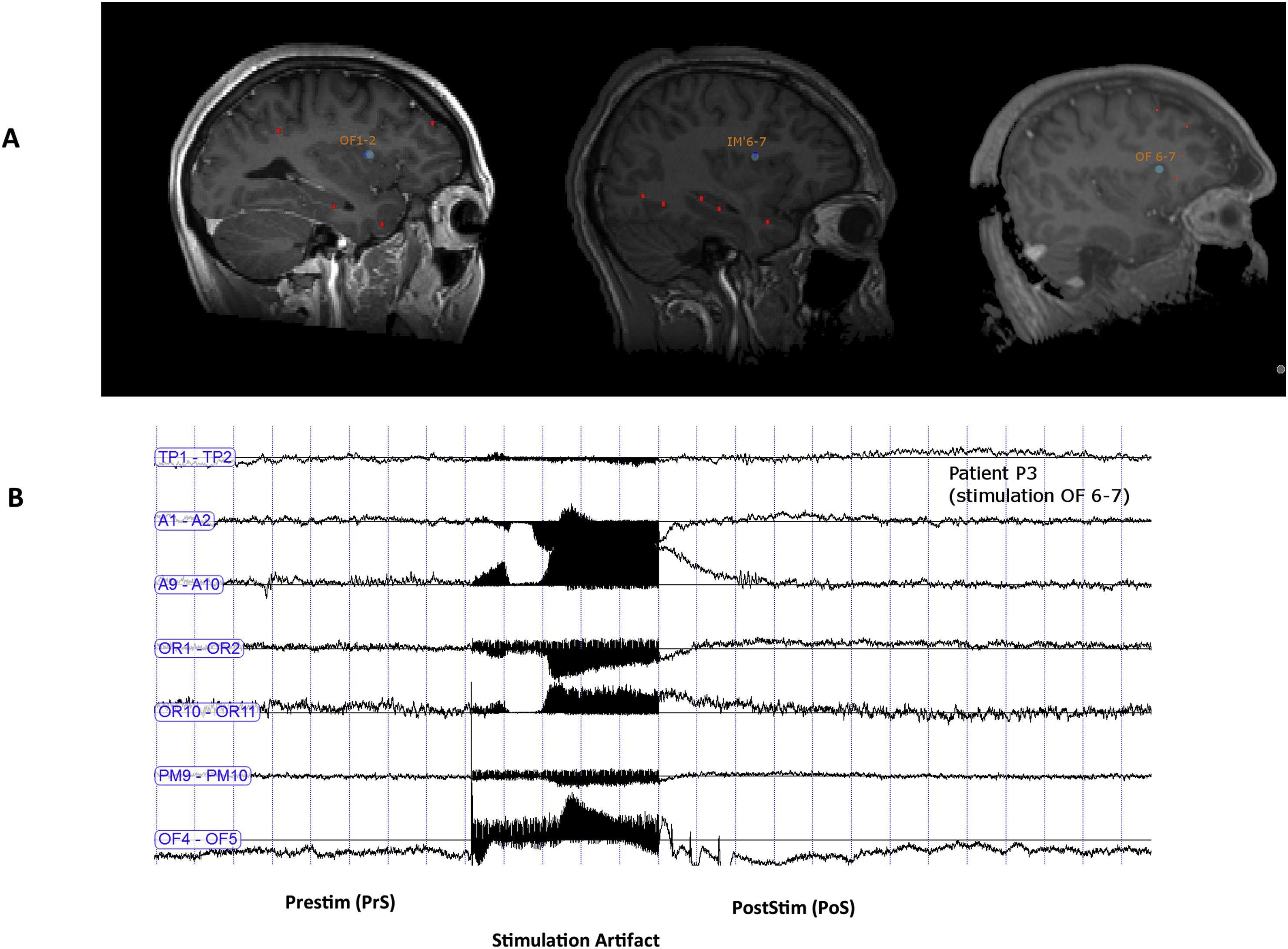 Эпилепсия, экстаз, стимуляция и островковая кора