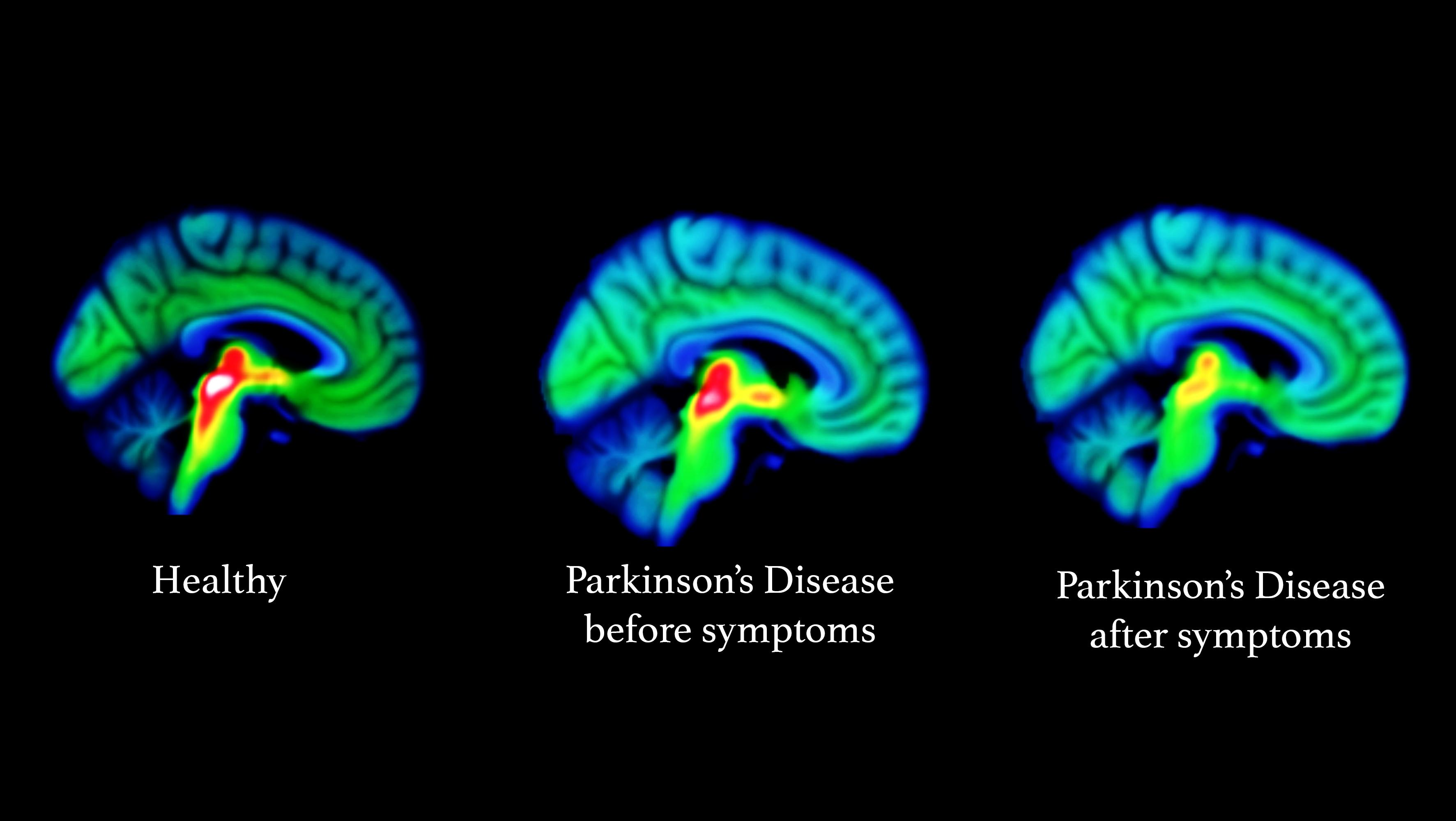 Ученые вычислили болезнь Паркинсона по серотонину