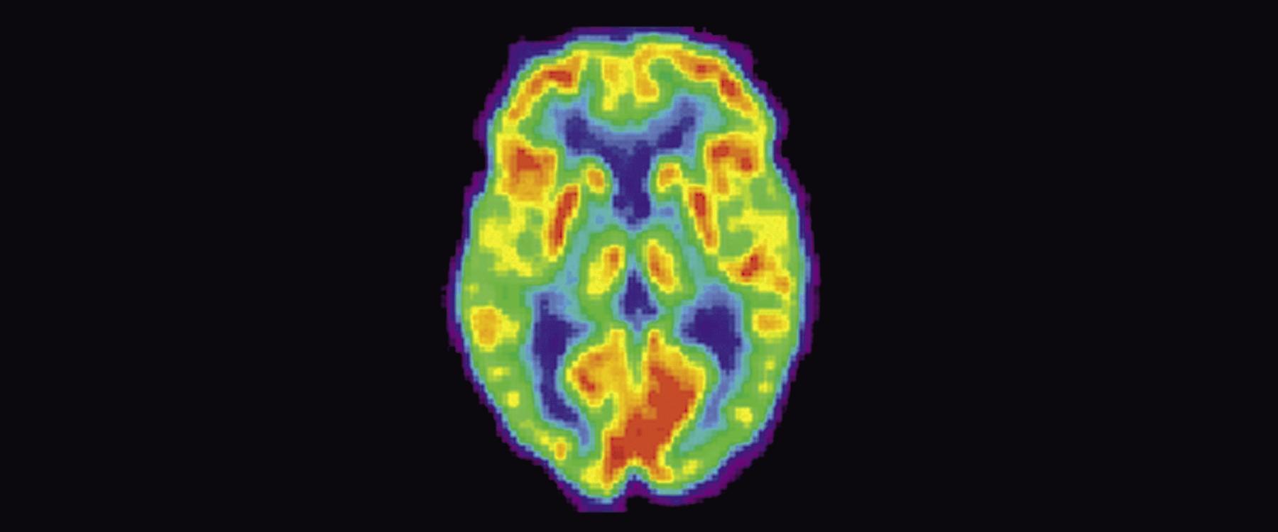 ПЭТ с глюкозой лучше предсказывает «глубину» симптомов болезни Альцгеймера