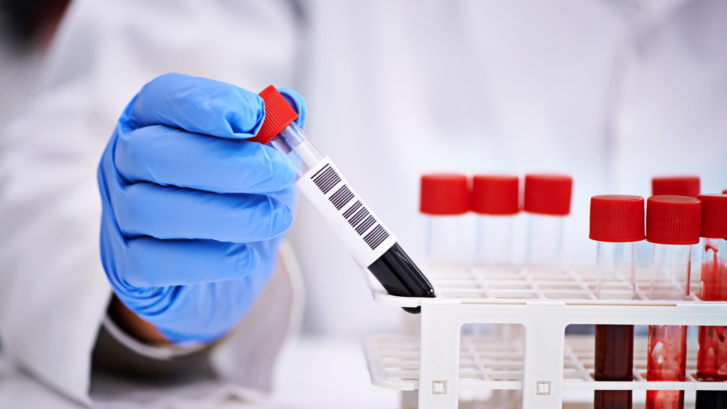 Анализ крови поможет определить болезнь Альцгеймера до появления симптомов