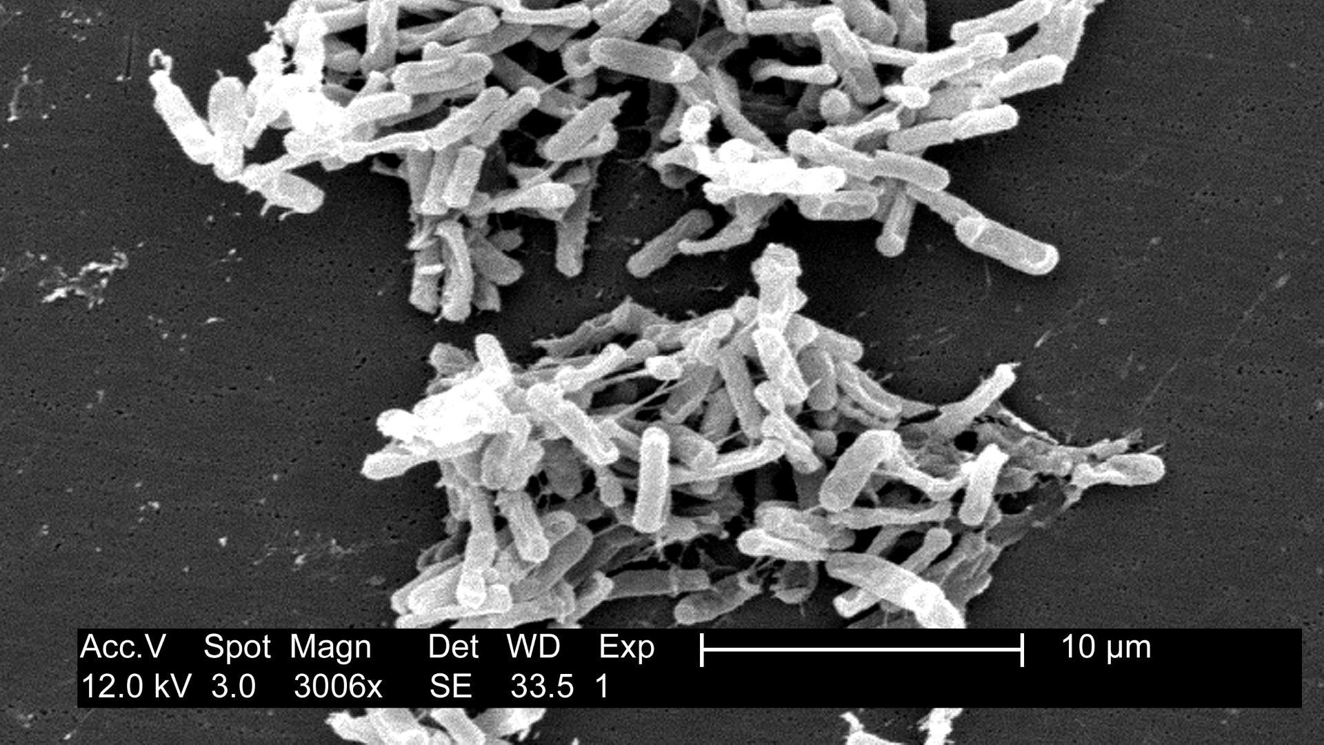 Бактерия Clostridium difficile любит сахар в еде