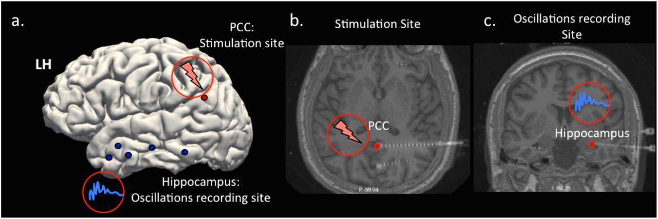 Глубокая стимуляция мозга влияет на память