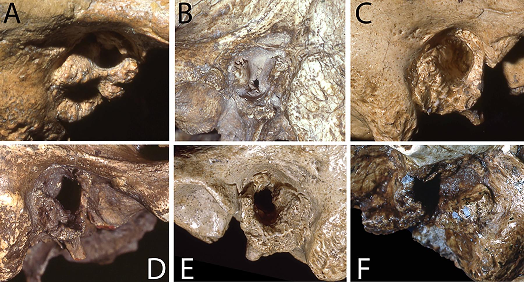 У неандертальцев обнаружили «ухо сёрфера»
