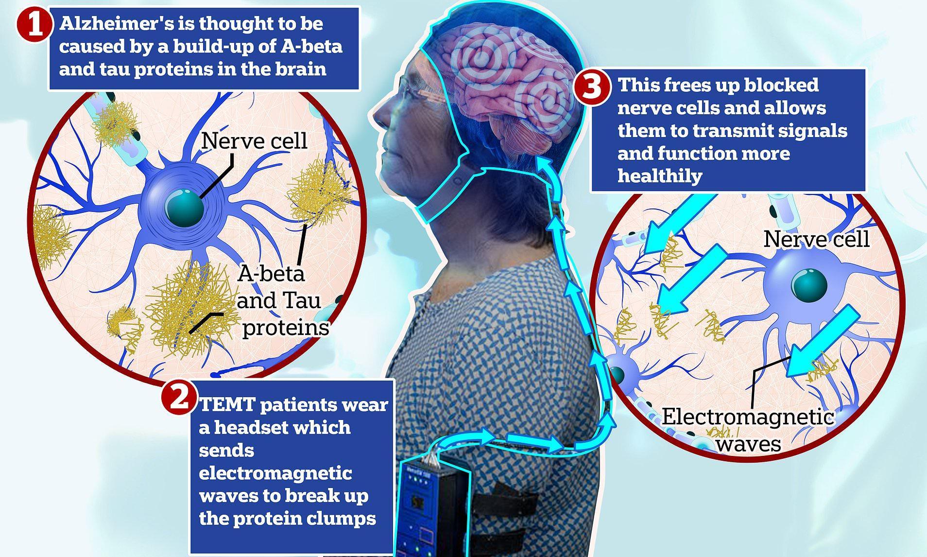 Транскраниальная стимуляция повернула болезнь Альцгеймера вспять
