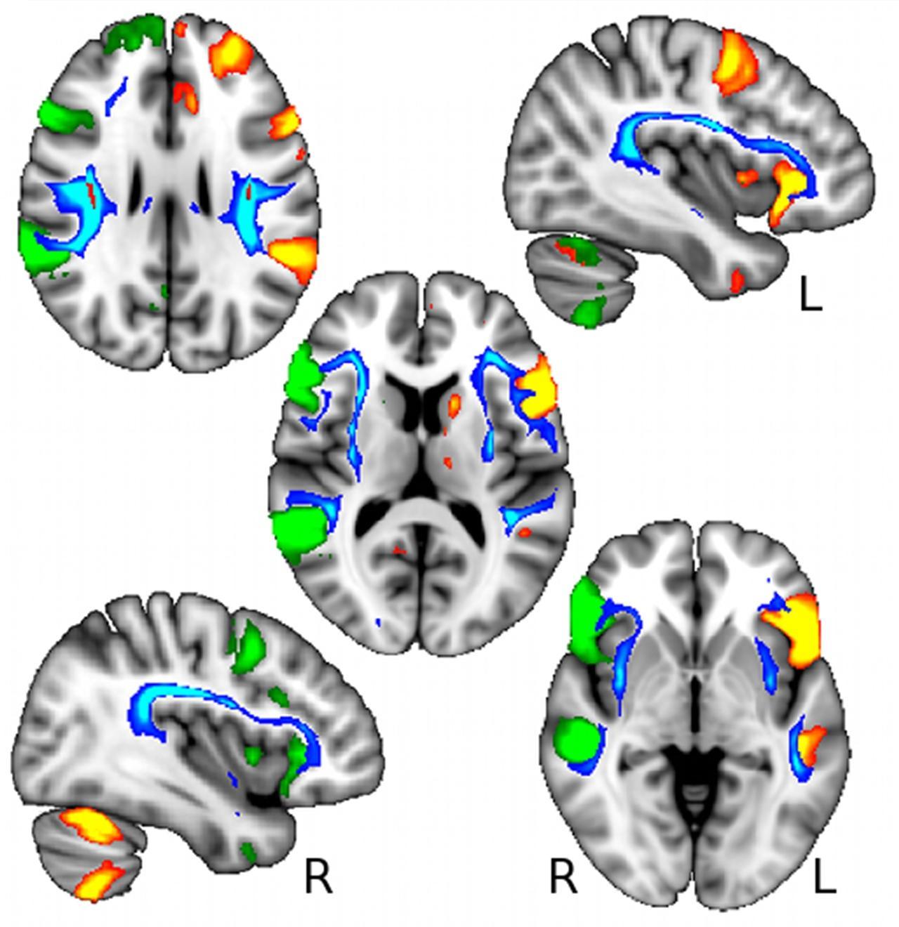 Леворукость оказалась связана с отличиями в геноме и структурах мозга