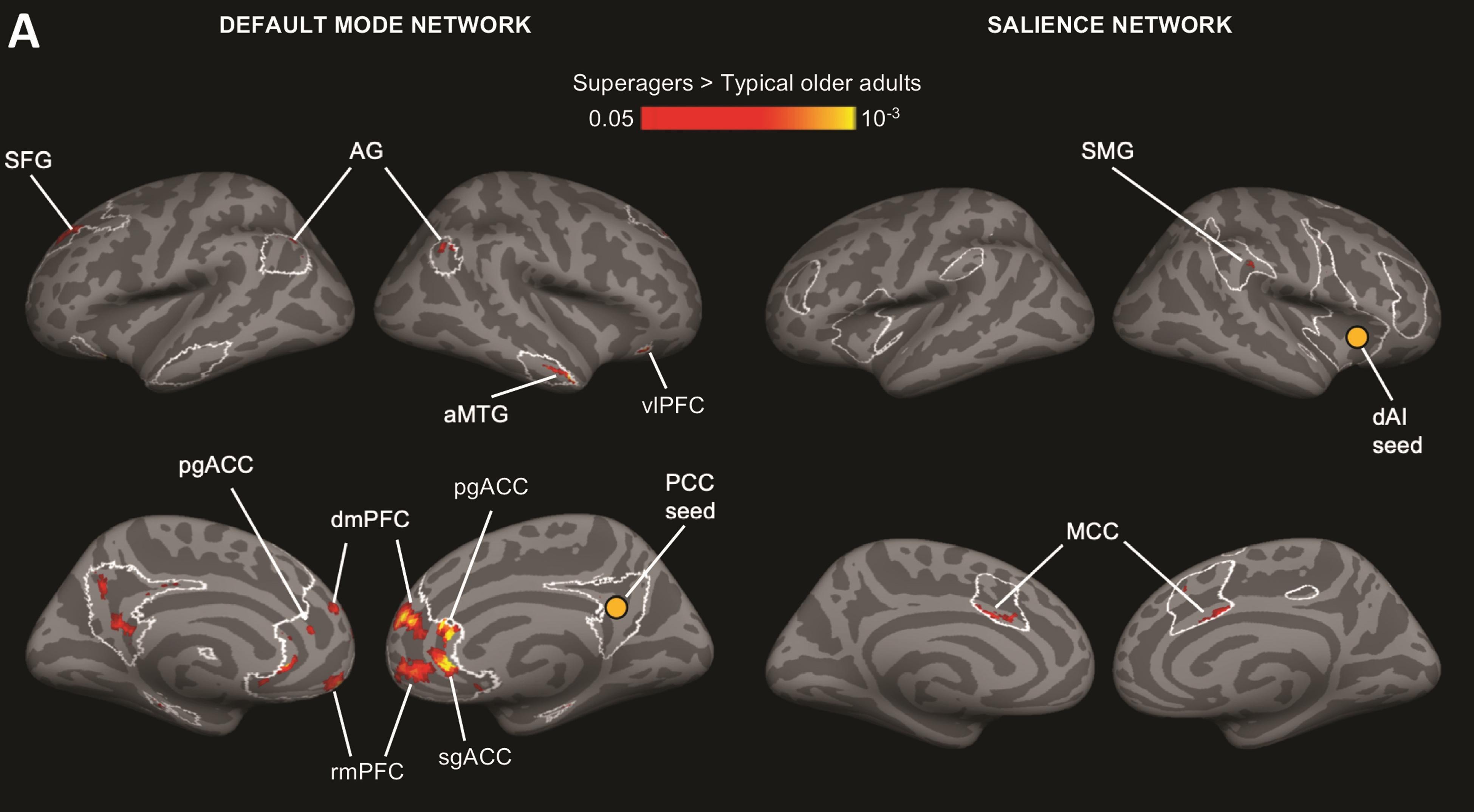 Чем отличается мозг «суперстариков» от мозга обычных пожилых людей?