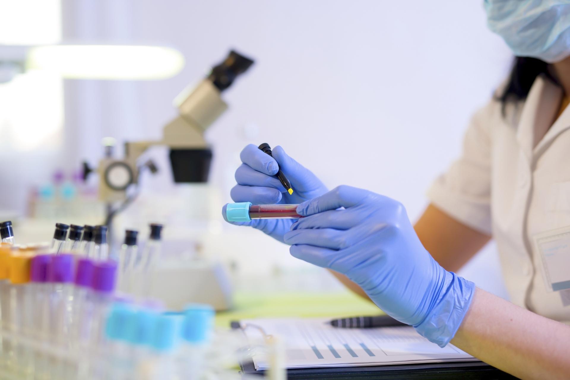 Почему нужно сдавать анализ на гепатит