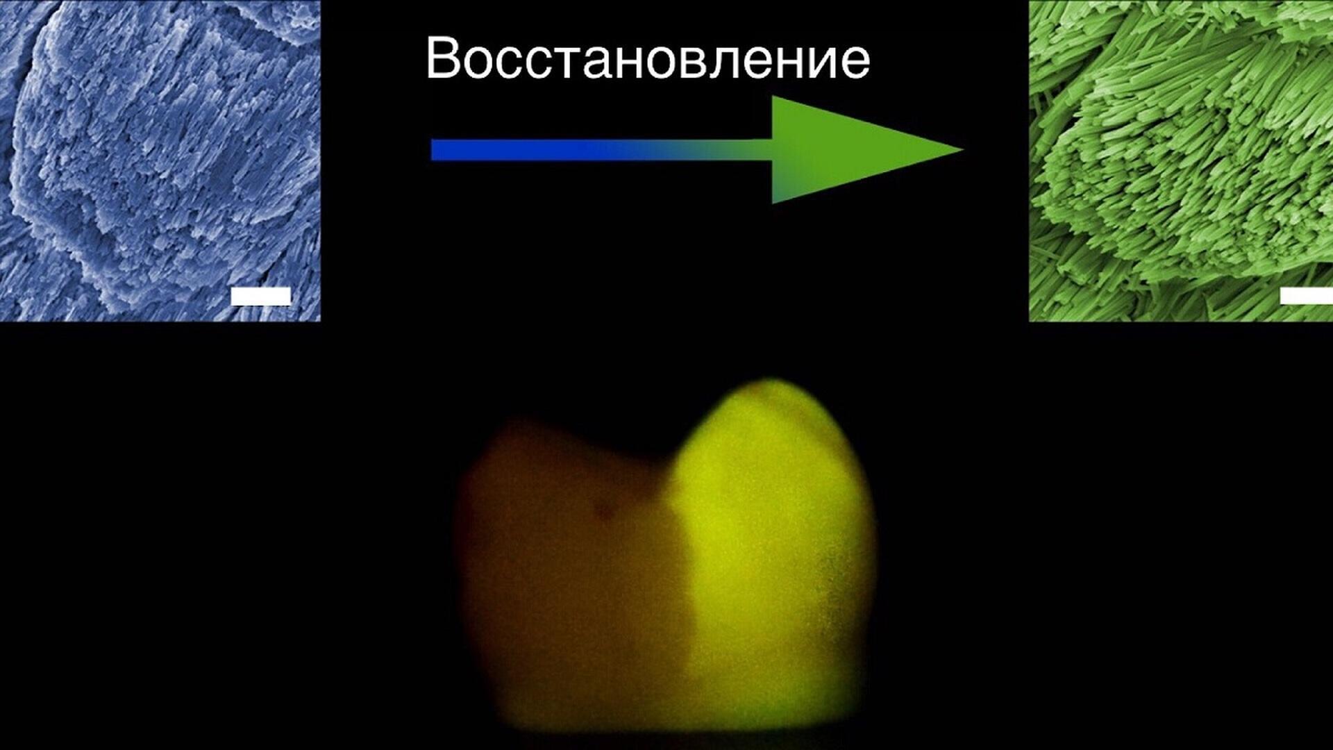 Химики нашли простой способ восстанавливать зубную эмаль
